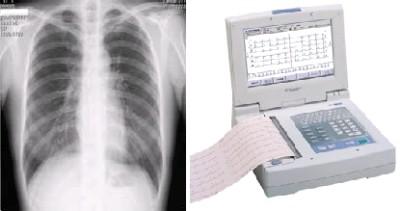 胸部X線・心電図